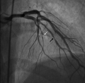 Figure 1. Contrast injection in the left coronary system: progressive occlusive stenosis on the LAD with TIMI 0 distal flux (white arrow) and 85-90% stenosis on the first diagonal artery (black arrow).