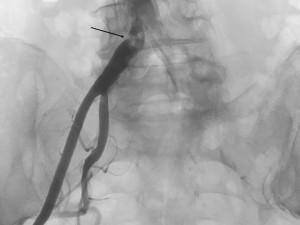 Figure 1. Sub-occlusive stenosis of the right common iliac artery; note the intense calcification of the terminal aorta and both iliac arteries.