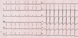 Figure 1. ECG at presentation: atrial fibrillation with fast ventricular rate, LV hypertrophy and mixed ST-T wave changes.