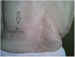 Figure 1. Angiokeratoma - skin lesion typical for AFD.
