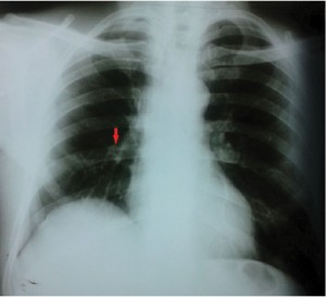 Figure 1. Chest X ray shows a small nodular lesions in the right lower lobe (red arrow), ascended right hemidiaphragm and right pleural adhesion.