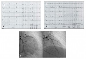 Figure 2. A. Rest Electrocardiogram(ECG) – normal; B. The positive exercise test: ST depression in leads II, III, aVF, V3-V6 and ST segment elevation in aVR; C. The coronary arteriography: suboclusion located at the ostium of LAD. ( LM - left main coronary artery, LAD - left anterior descending, CX - left circumflex artery).