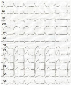 Figure 2. The electrocardiogram performed at admission - first degree atrioventricular block, left bundle branch block.