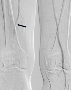 Figure 2. Acute thrombotic occlusion of right popliteal artery (arrow). Permeable left popliteal artery with calcified athermanous plaques.