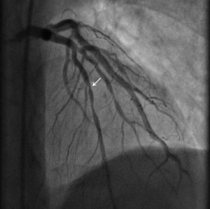 Figure 3. After intracoronary nitroglycerine administration: we can visualize the LAD course with 90% stenosis at the place of initial complete occlusion (arrow) and general coronary vasodilatation.