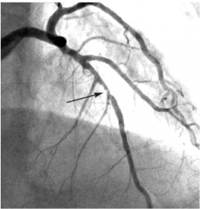 Figure 3. Image showing a tight angiographic appearance thrombotic coronary stenosis Inter ventricular anterior.