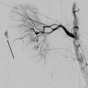 Figure 4. Selective injection in the right renal artery; arrow indicates the site of the effraction.