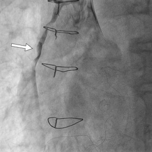 Figure 4. Thrombotic occlusion on the saphenous vein grafts (SVG) bypass for right coronary artery (RCA).