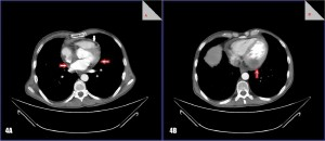 Figure 4. CT scan. 4A - A pericardial mass (between red arrows), pericardial effusion (white arrow) 4B - An intramyocardical hypodense mass.