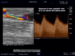 Figure 5. Color Doppler ultrasound of the cephalic vein. Stenosis at 2 cm above elbow joint.