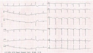 Figure 1. ECG tracing depicting ST-segment elevation in leads V2-5, pathological Q waves in V1-3 leads, and negative T waves in lead V6.