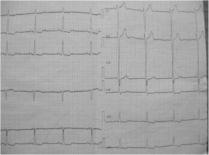 Figure 2. ECG with left ventricular hypertrophy and secondary repolarisation abnormality.