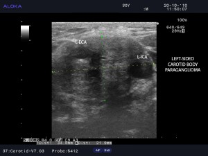Figure 3. B-mode ultrasound imaging of the left-sided carotid paraganglioma with Shamblin class III characteristics – splaying of the carotid bifurcation and complete surroundings of the carotid arteries. Cranio-caudal diameter has 21.9 mm and transversal diameter has 34.8 mm. L-ECA = left external carotid artery; L-ICA = left internal carotid artery.