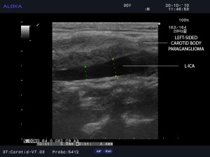 Figure 5. B-mode ultrasound imaging of the left sided paraganglioma attached to the proximal wall of the left internal carotid artery in longitudinal view. L-ICA=left internal carotid artery.