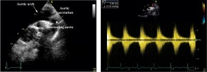 Figure 8. Transthoracic echocardiography, suprasternal view: aortic coarctation seen in 2D (A),with a peak systolic gradientof 31 mmHg at continuous wave Doppler examination (B).